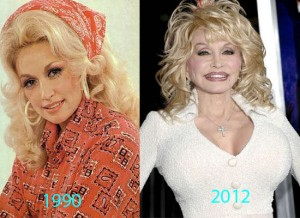 Dolly-Parton-Plastic-Surgery