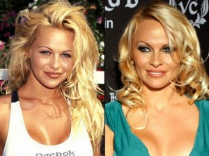 celebrities_before_and_after_plastic_surgery_11